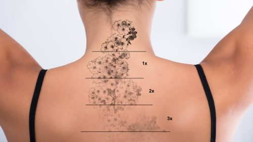 Tattoo Removal services at Studio Health